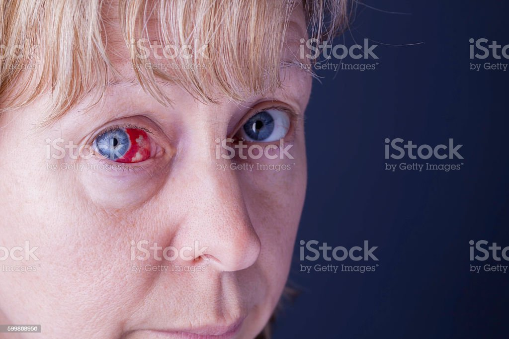 Face with bloodshot eye with copy space. stock photo
