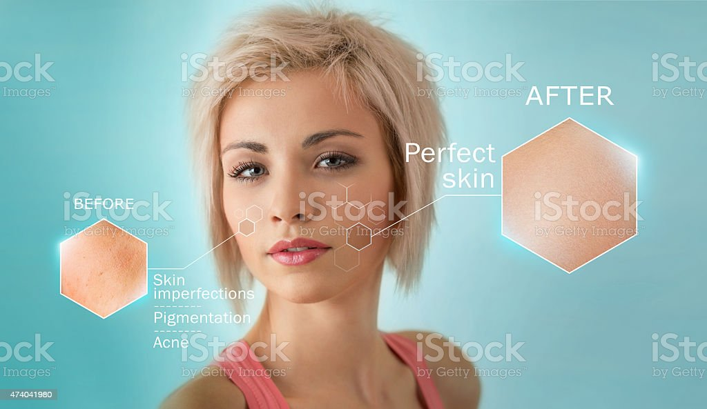 Facial close-up showing the effectiveness of skin treatment stock photo