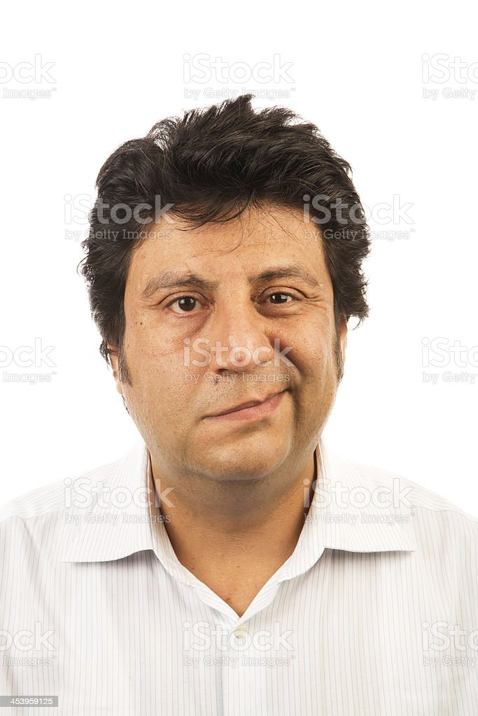 Facial Paralysis stock photo