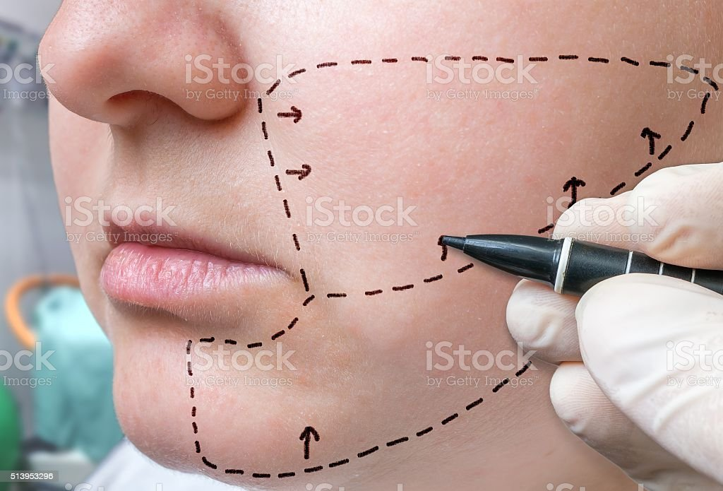 Facial plastic surgery. Hand is drawing with marker on check stock photo
