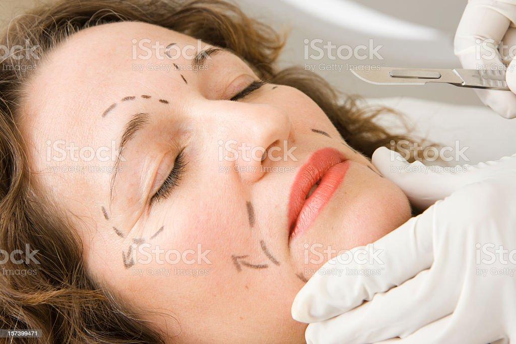 Facial plastic surgery stock photo