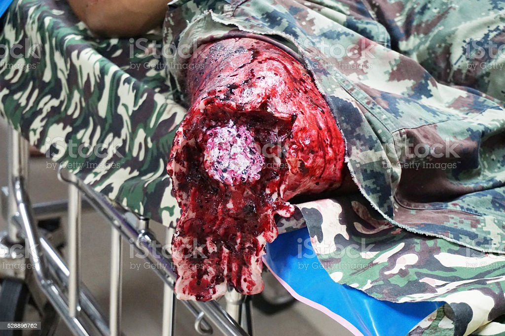 Fake explosion wound of soldier's leg stock photo