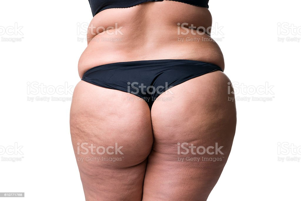 Fat female body with cellulite, fatty hips and buttocks stock photo