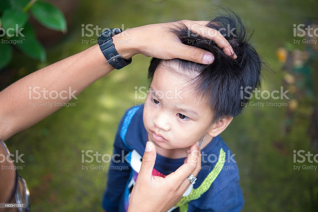 Father checking child face for mosquito bite sore. stock photo
