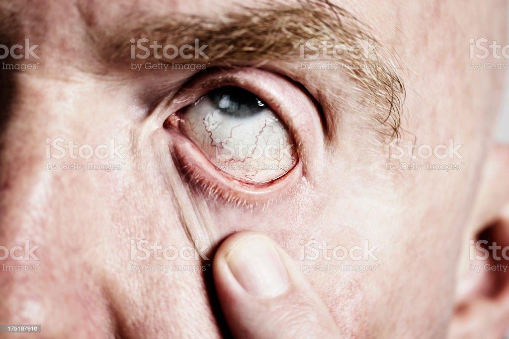 I feel terrible! Man with hangover shows bloodshot eye stock photo