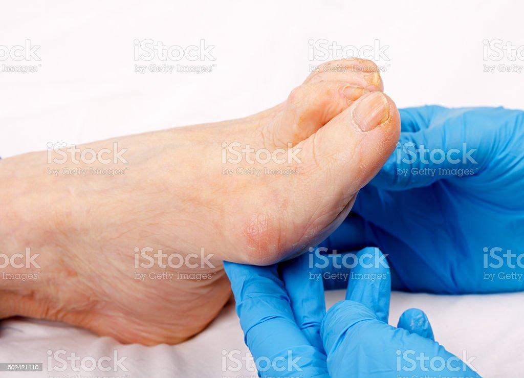 Feet care stock photo