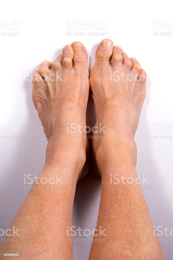 Feet Deformed From Rheumatoid Arthritis. stock photo
