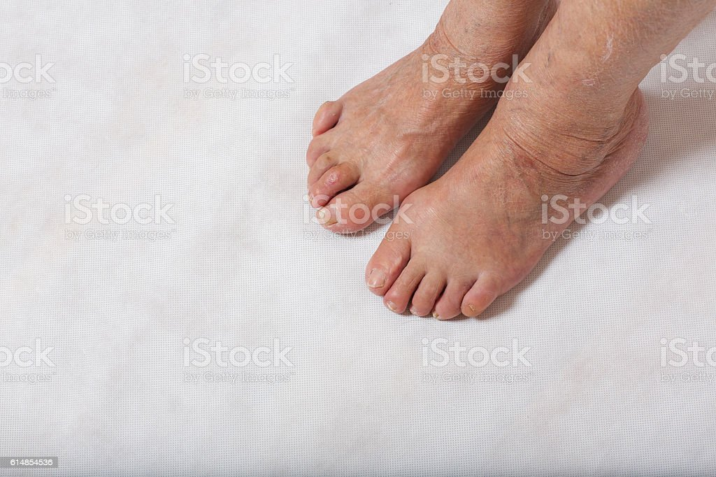 Feet of a senior woman. Closeup stock photo