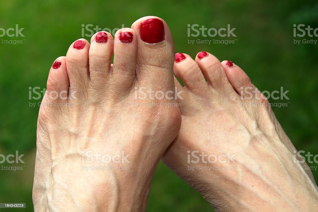 Feet with Bunions stock photo