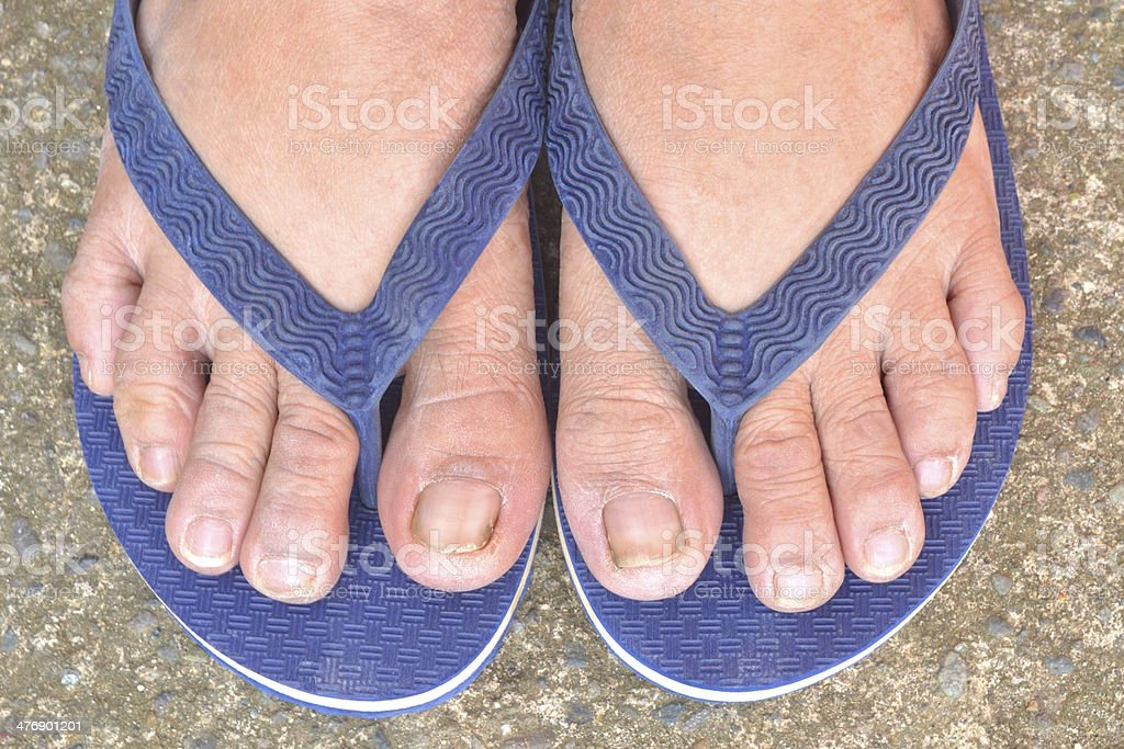 Feet with dirty toe nails royalty-free stock photo