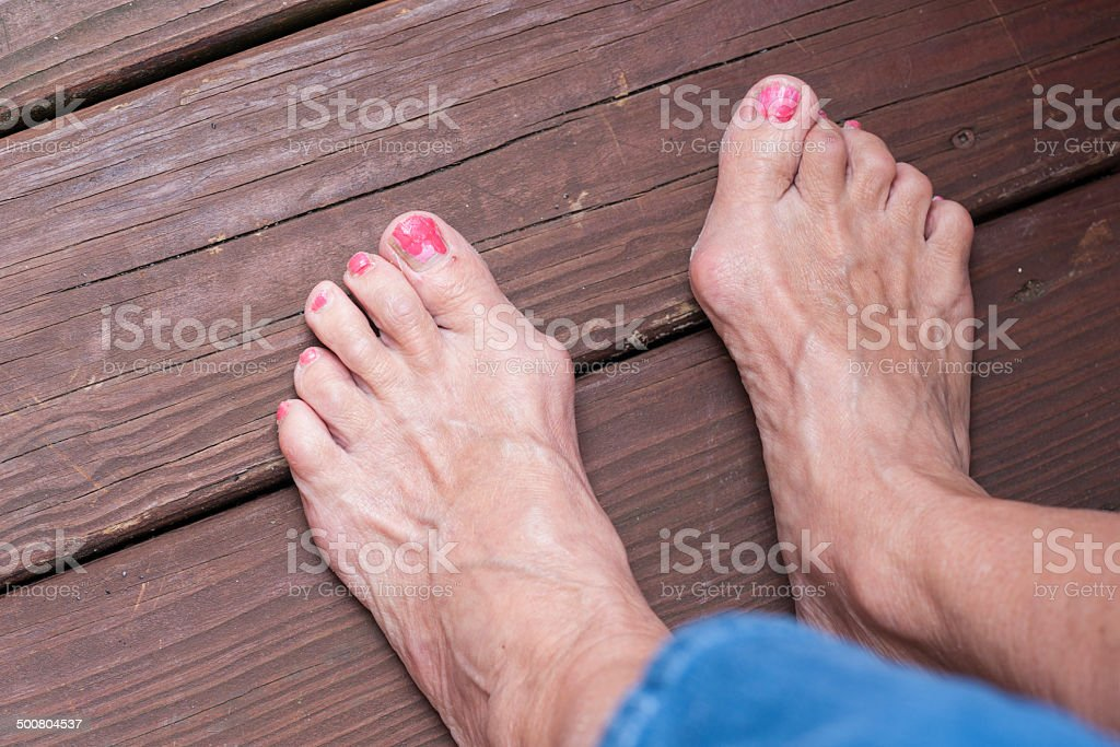 Feet with severe bunions stock photo