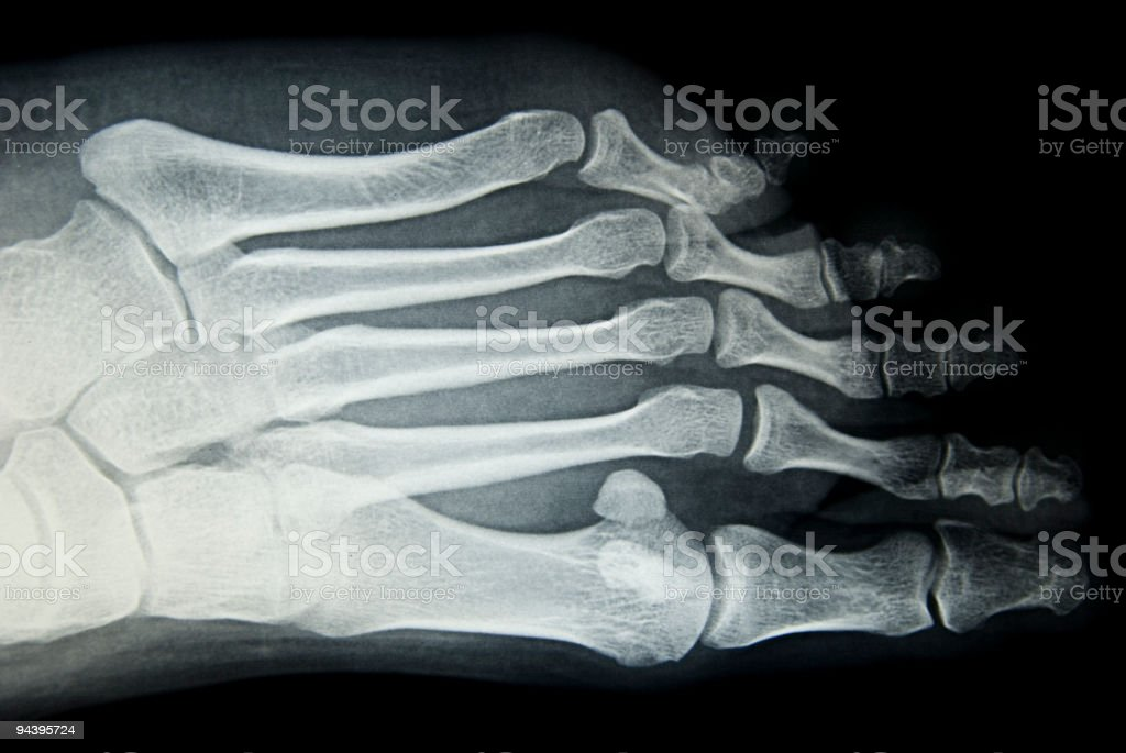 feet xray stock photo