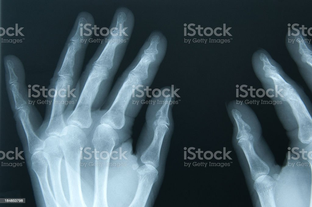 Female age 65 x-ray of hands stock photo
