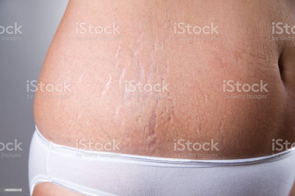 Female belly with stretch marks closeup stock photo