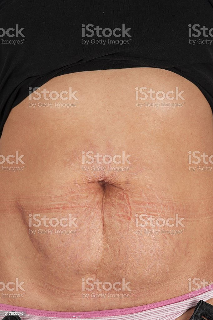 female belly with stretch marks stock photo