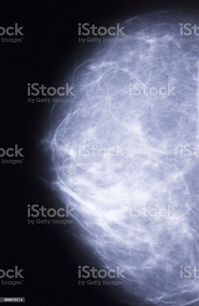 Female chest xray with cancer stock photo