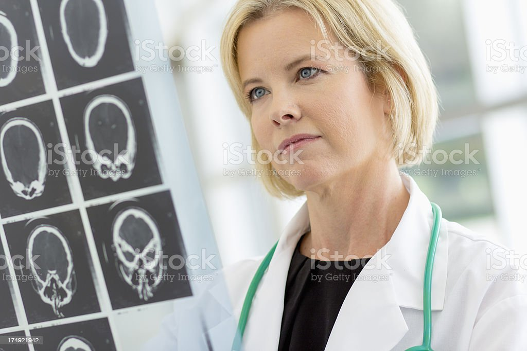 Female doctor checking an MRI scan stock photo