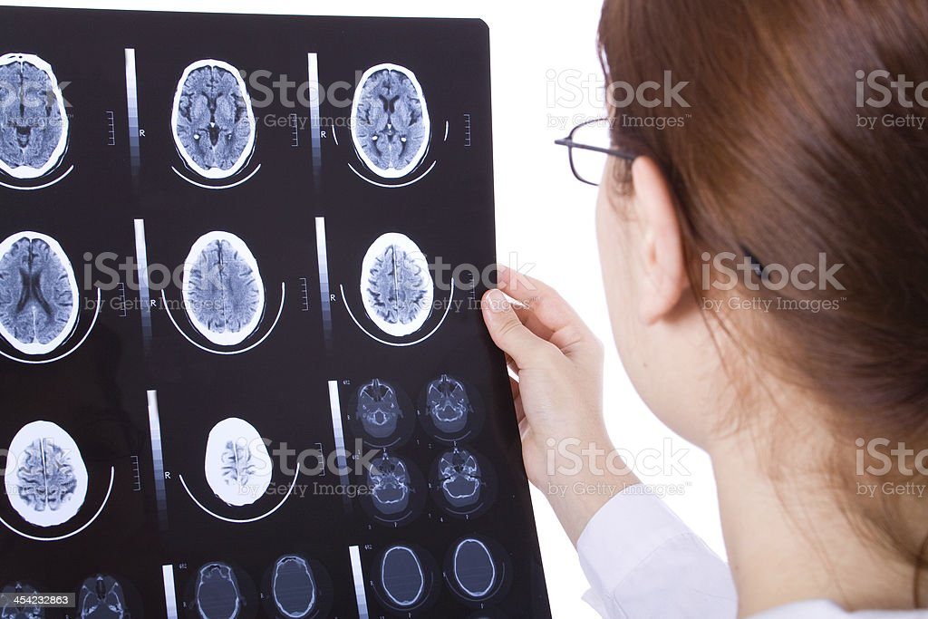 Female doctor examining a brain cat scan royalty-free stock photo