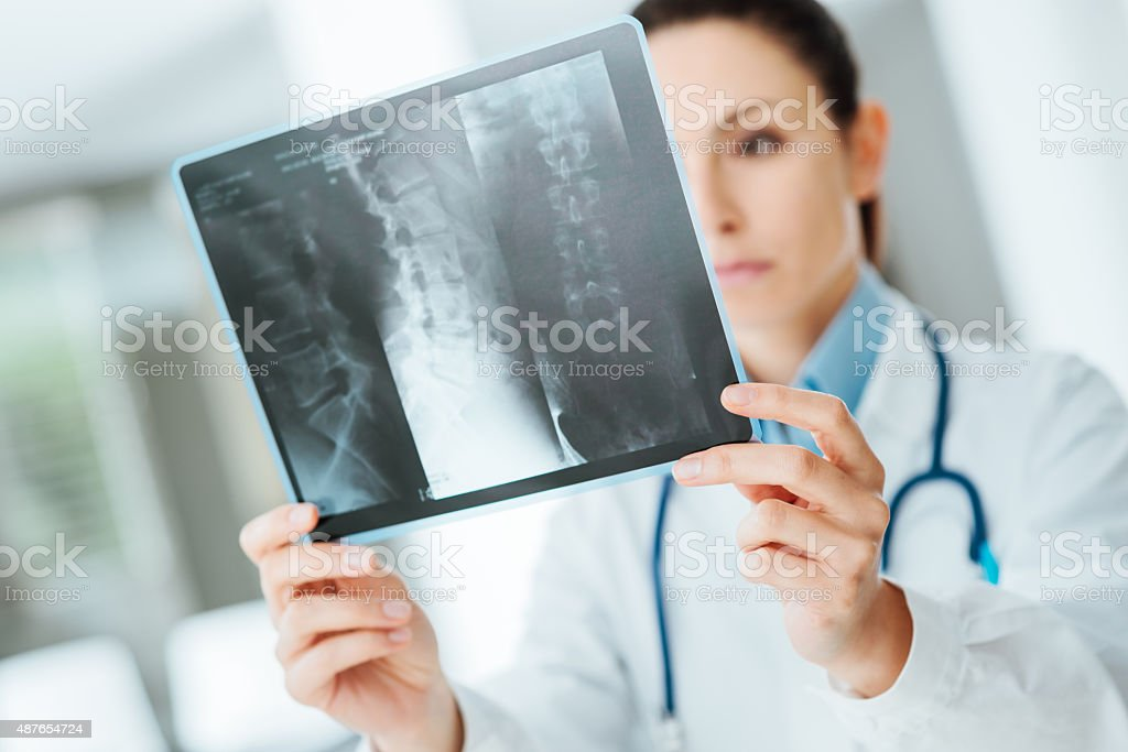 Female doctor examining an x-ray stock photo
