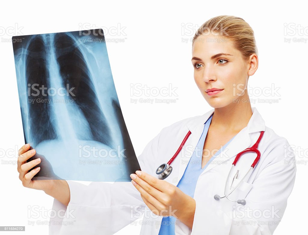 Female Doctor Examining Lungs X-Ray stock photo