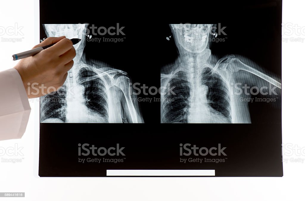 Female doctor looking at X-Ray stock photo