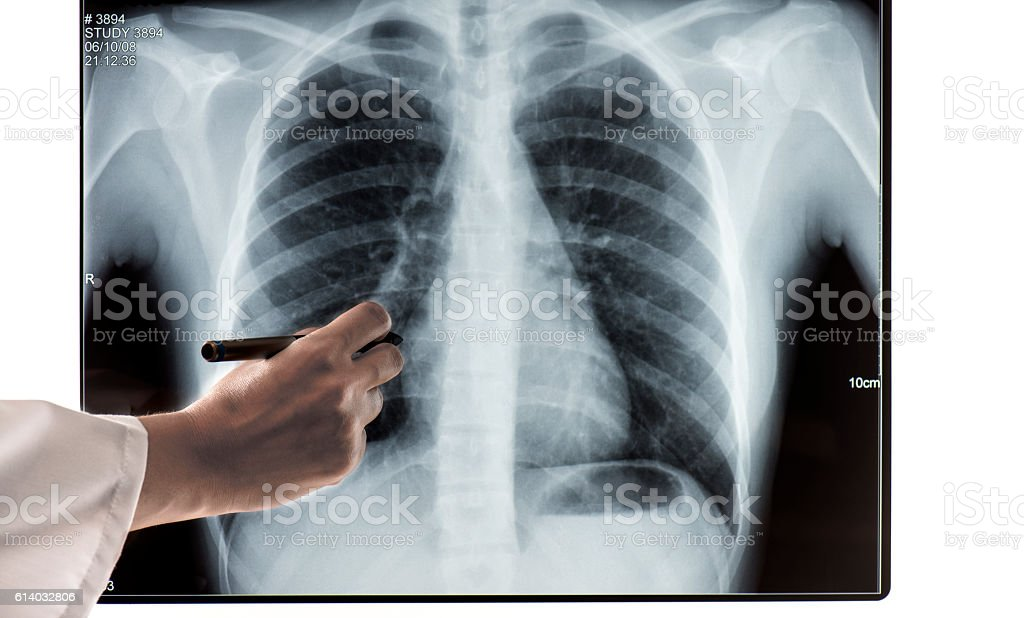 Female doctor pointing at X-Ray stock photo