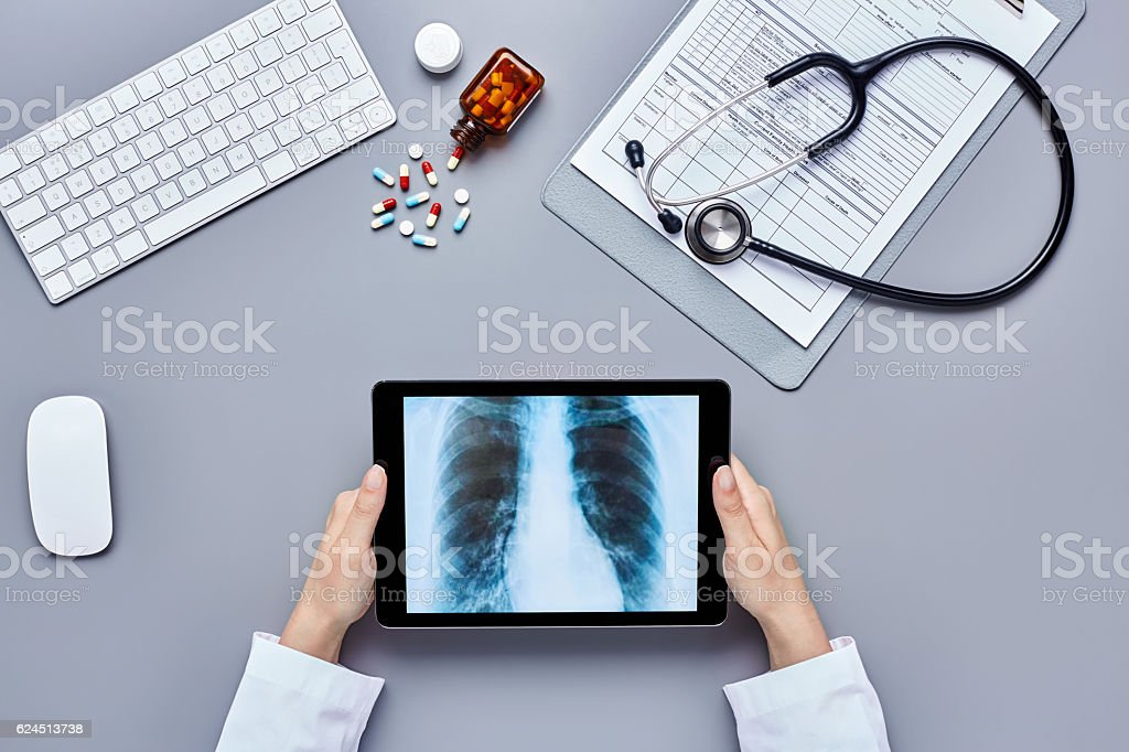 Female doctor's hands analyzing chest X-ray on digital tablet stock photo