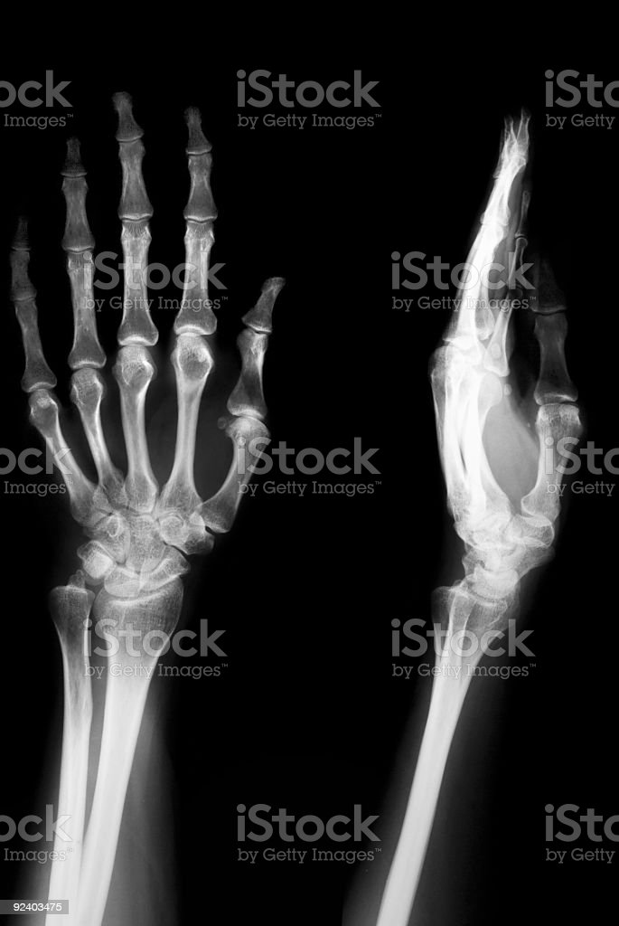 Female Hand with Osteoporosis royalty-free stock photo