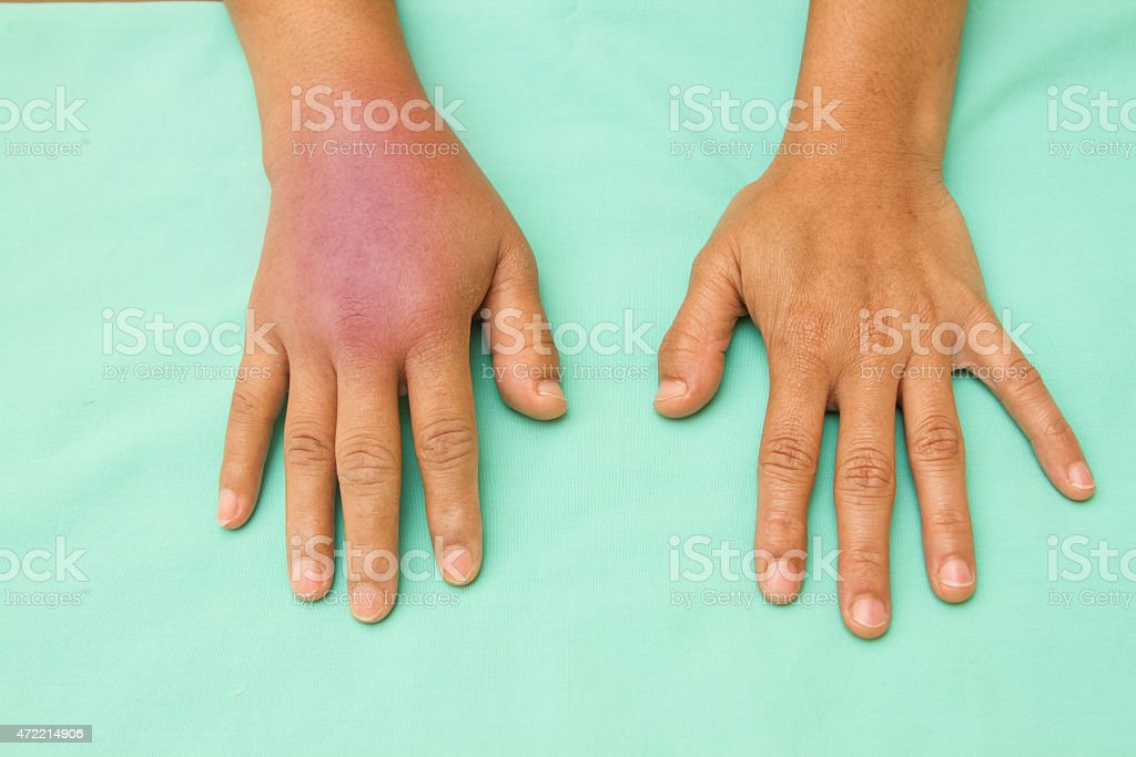Female hands one swollen and inflamed after accident stock photo