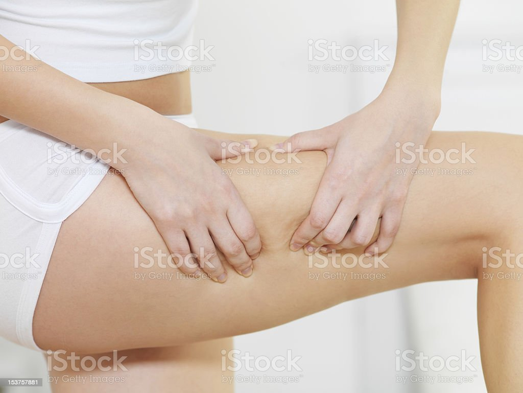Female squeezes cellulite skin on her legs royalty-free stock photo