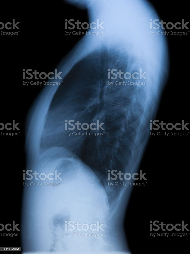 Female torso X-ray, side view royalty-free stock photo