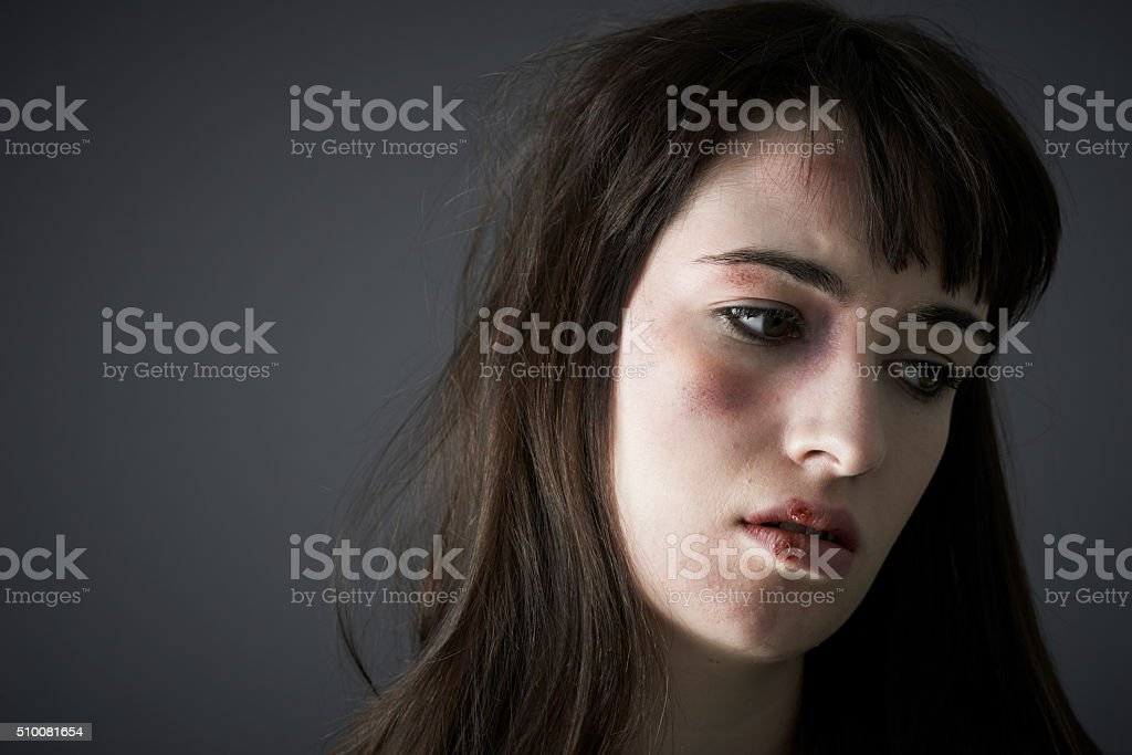 Female Victim Of Domestic Abuse stock photo
