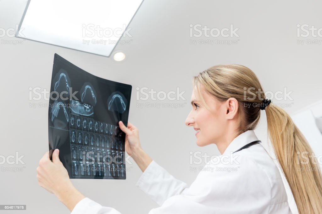 Female young dentist holding an x-ray stock photo