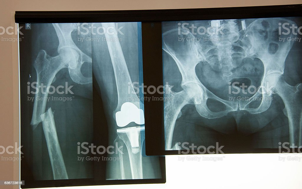 Femur Fracture, artificial knee, pelvis and hip stock photo