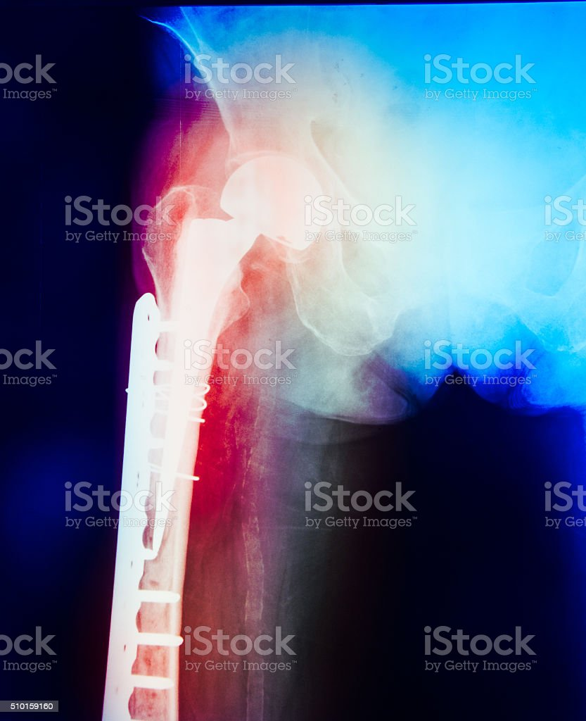 femur fracture stock photo
