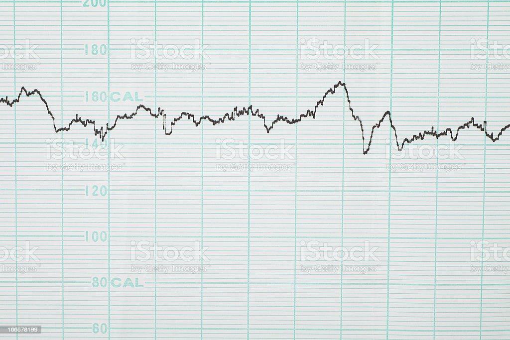 fetal monitoring chart stock photo