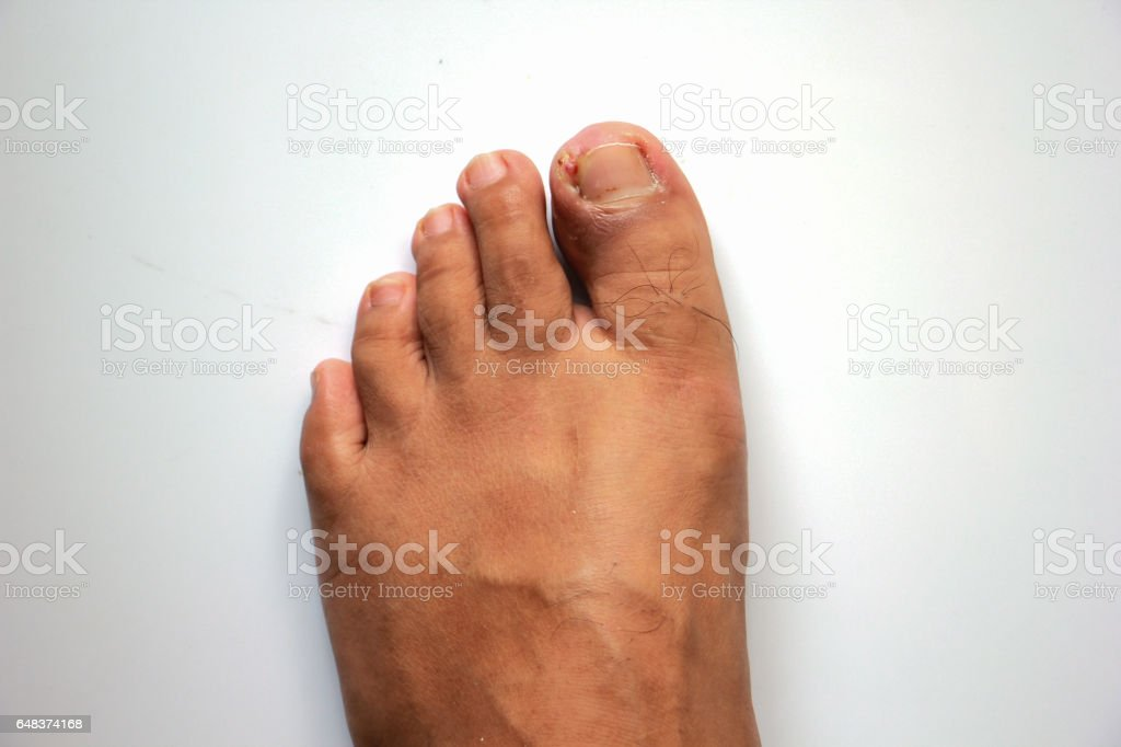 Figure out the nail, Accident nail trauma, bleeding toe nails, Foot ulcers figure out a nail, Onychocryptosis stock photo