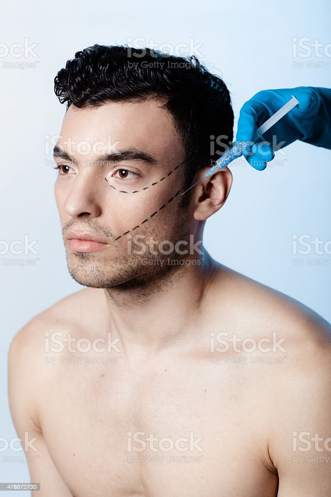 Filling wrinkles, crow's feet, injection of hyaluronic acid stock photo