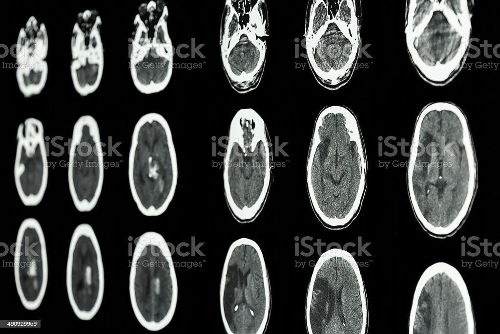 film CT scan of brain show ischemic and hemorrhagic stroke stock photo