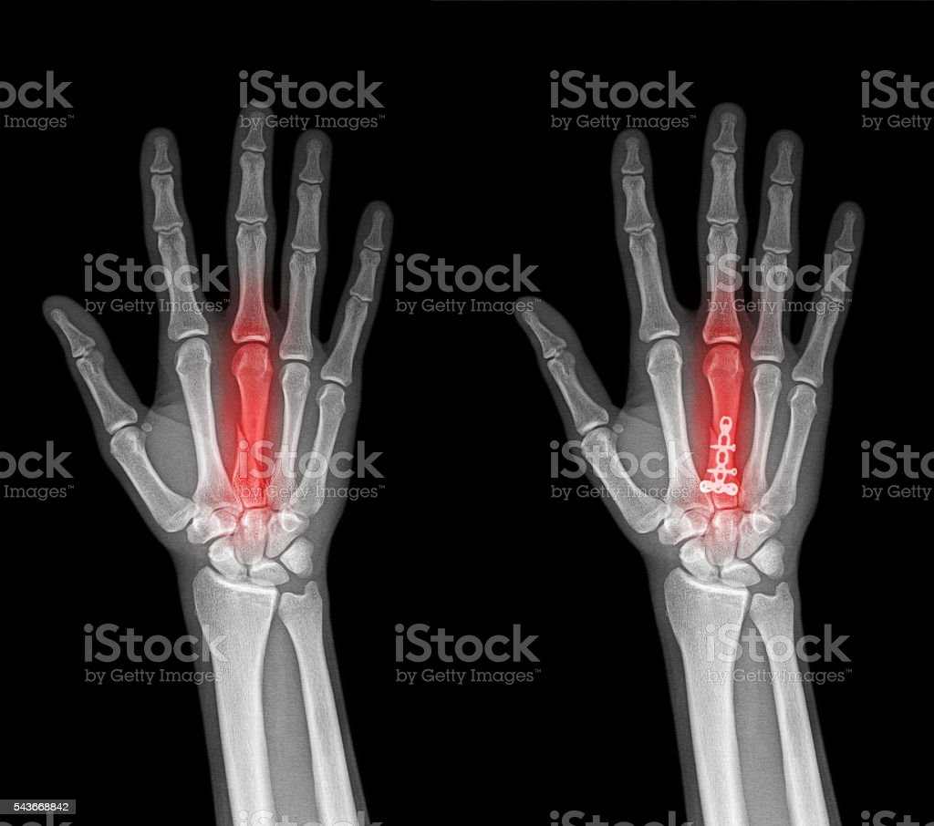 Film x-ray both hand AP stock photo