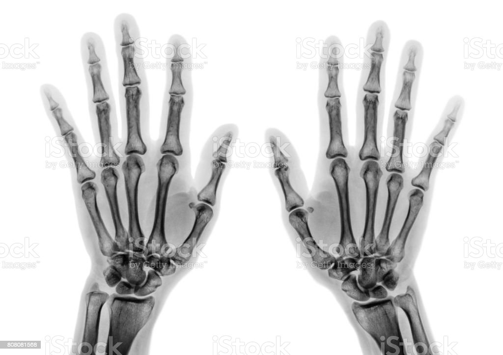 Film x-ray both hand AP show normal human hands on white background ( isolated ) stock photo