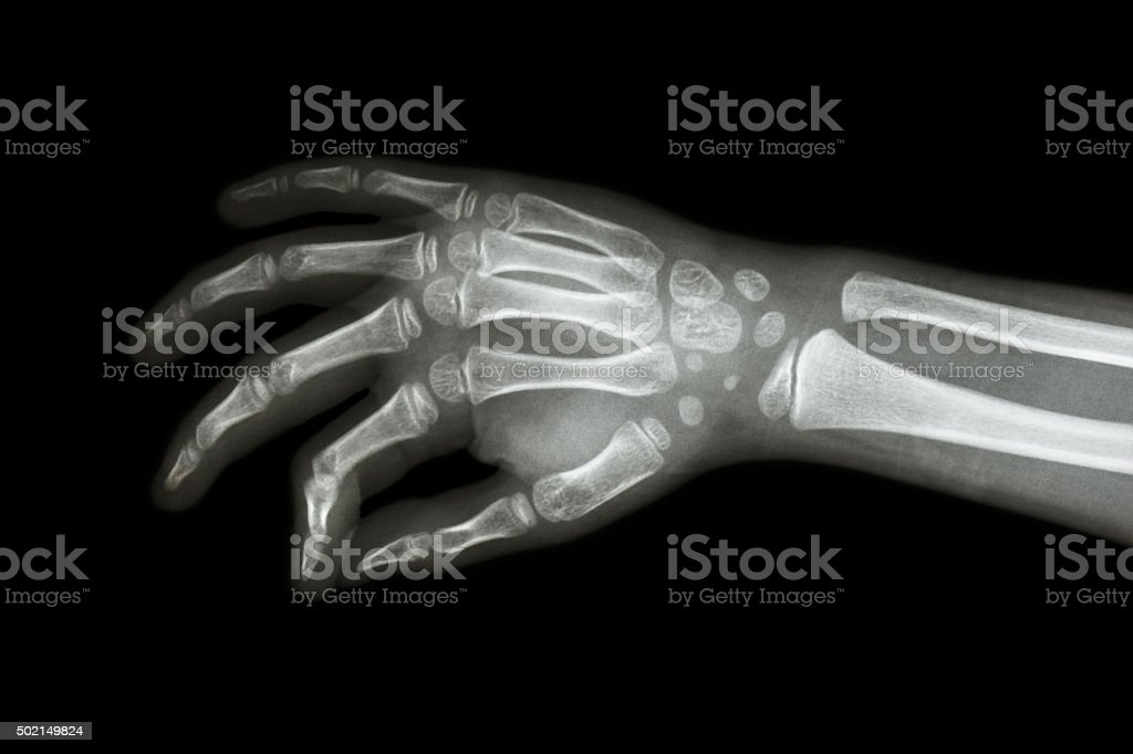 Film x-ray hand of child ( oblique view ) stock photo