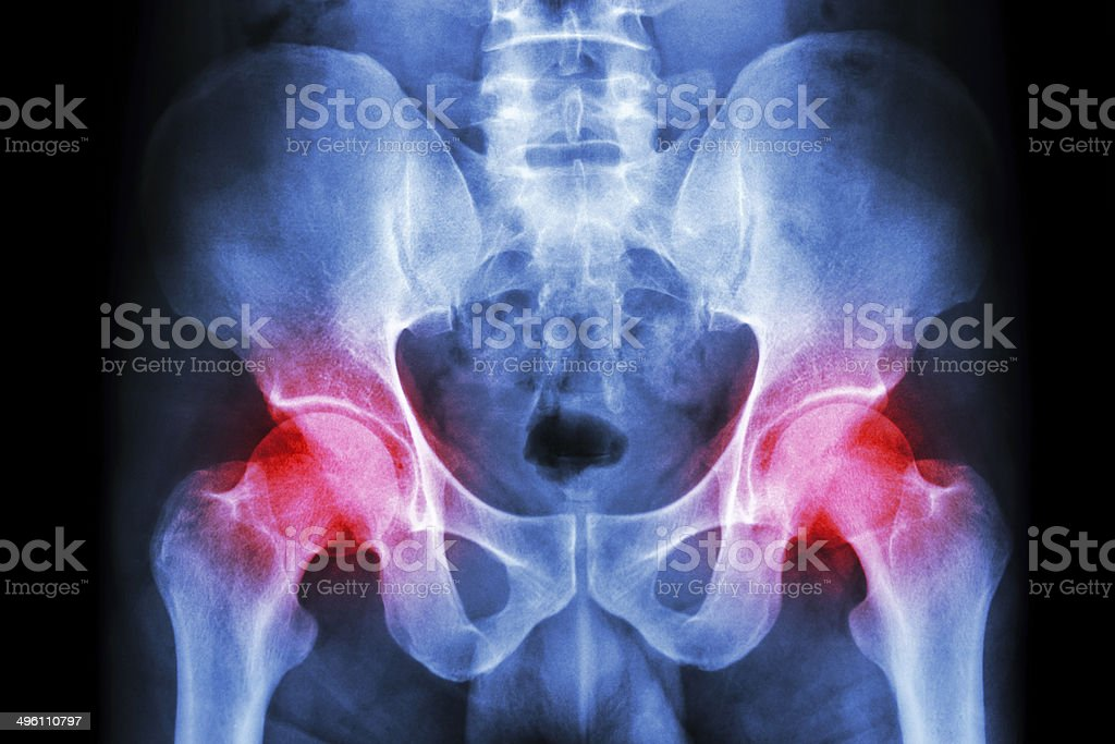 film x-ray human's pelvis and arthritis at both hip joint stock photo