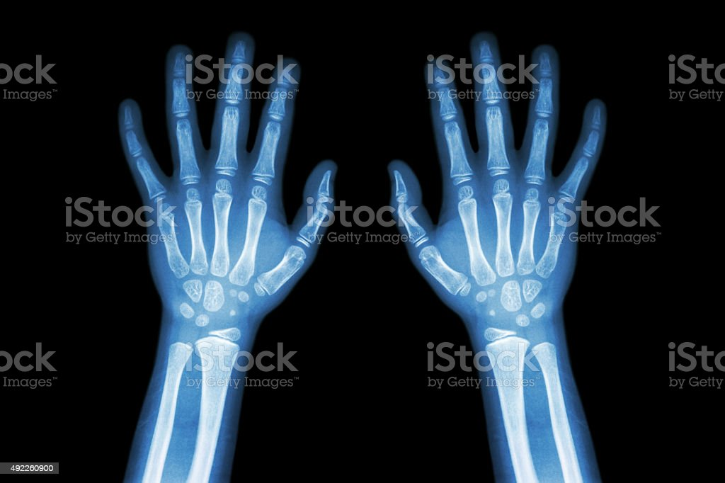 Film X-ray normal both hands of child stock photo