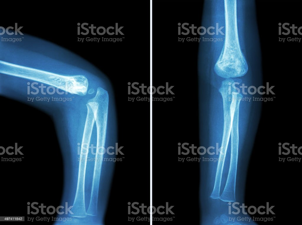 Film x-ray of child 's elbow stock photo