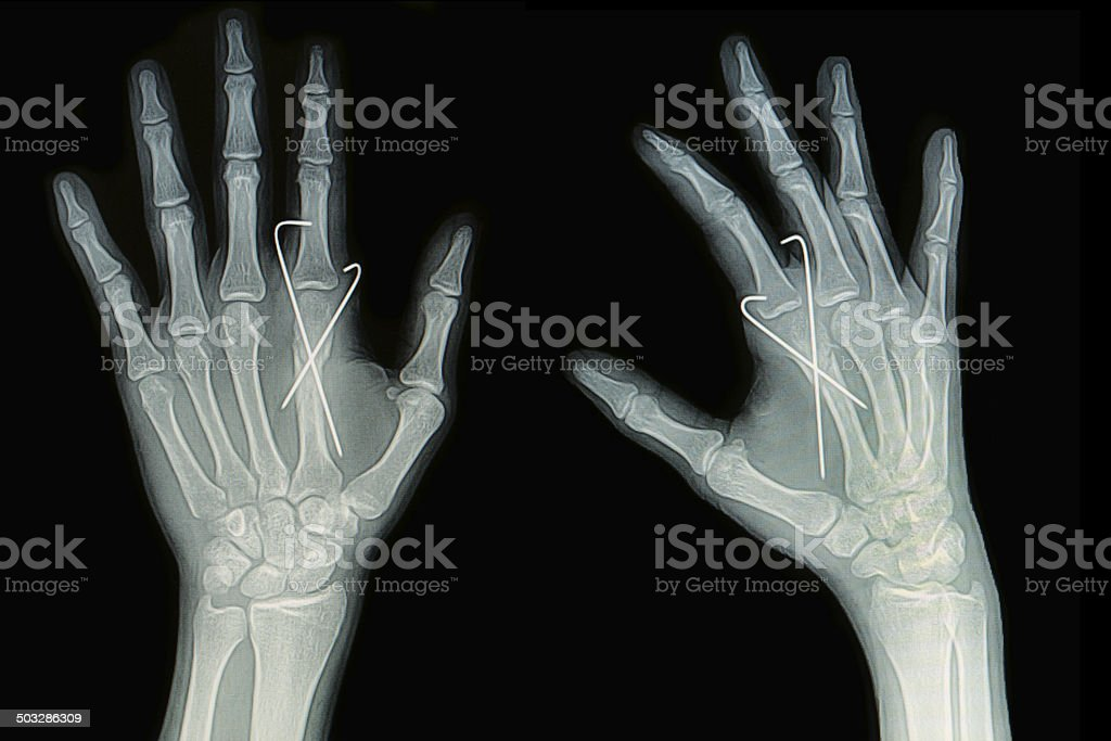 Film x-ray of hand fracture stock photo
