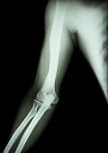 film x-ray of normal arm , elbow and forearm