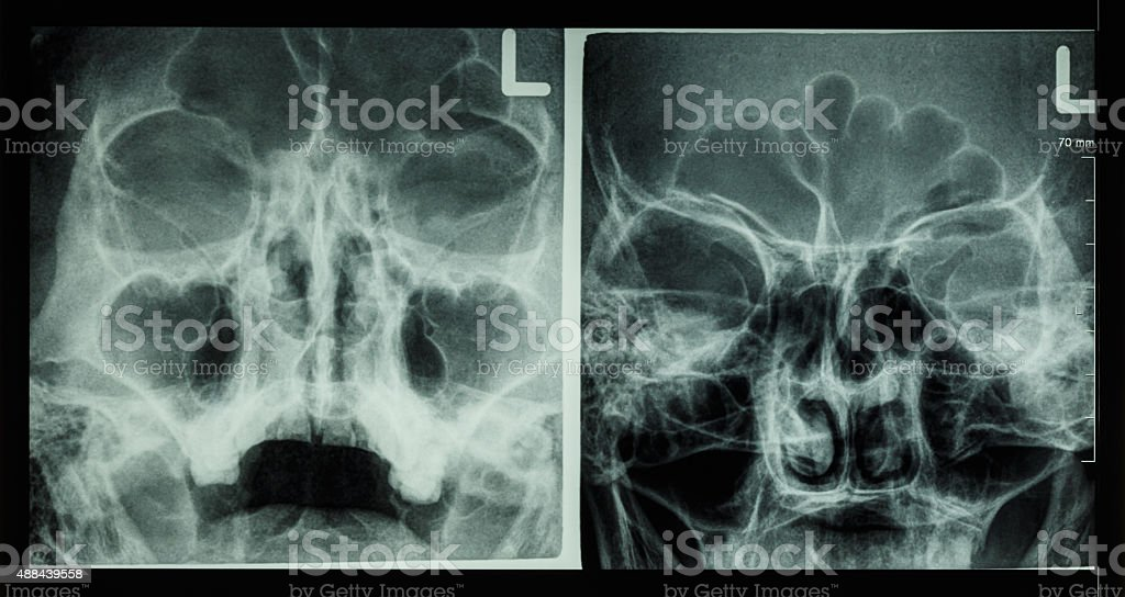 Film x-ray paranasal sinus stock photo