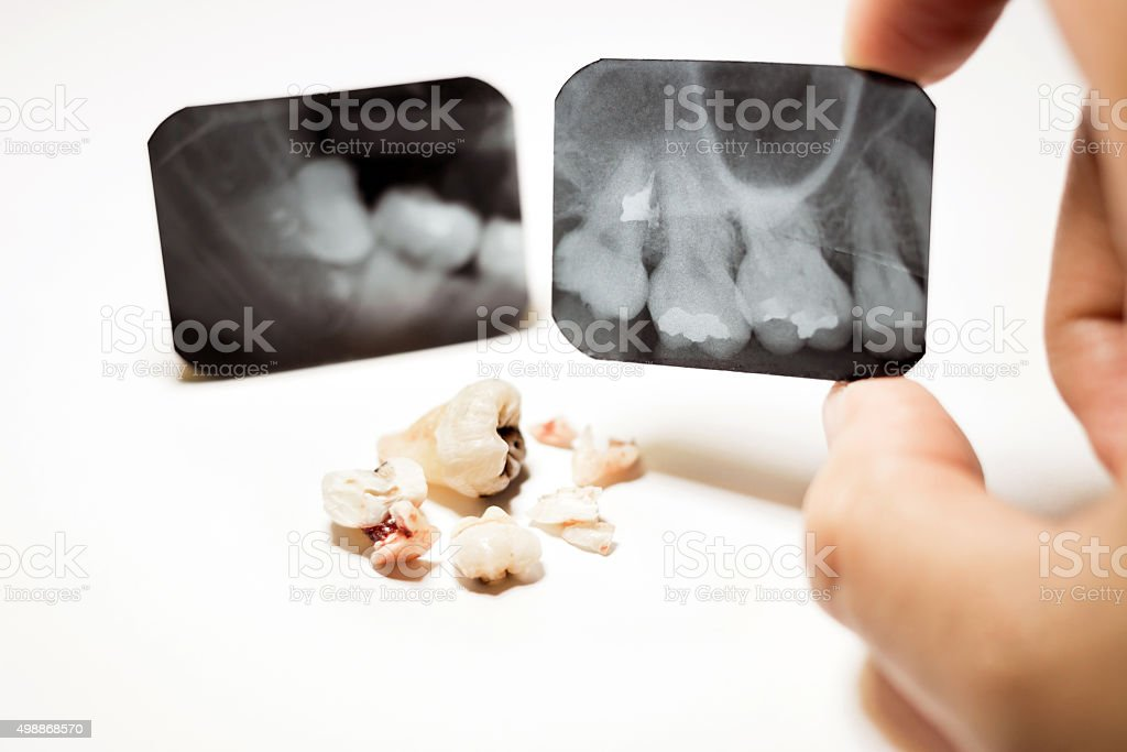 Film X-Ray scan for impacted tooth and tooth removal stock photo