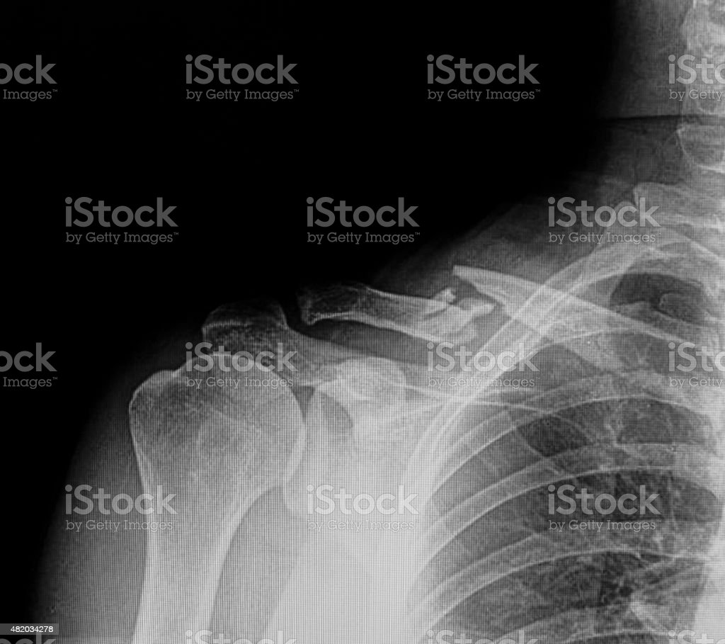Film X-ray show fracture clavicle stock photo